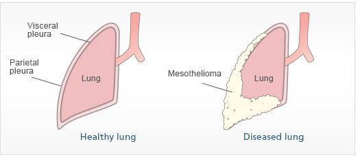 Mesothelioma  U0026 Asbestos Images  Diagrams  U0026 Graphs