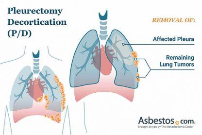 Pleurectomy decortication (P/D) surgery for pleural mesothelioma