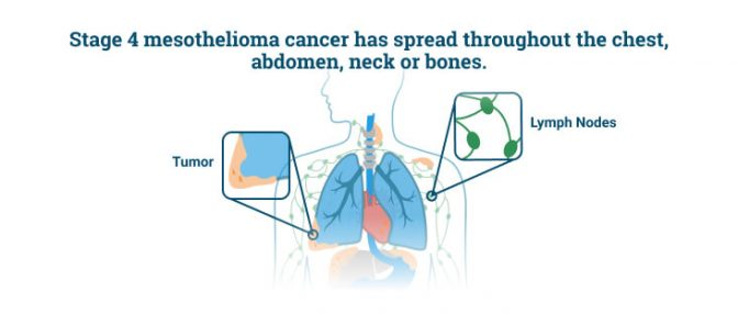 Stage 4 mesothelioma tumors spreading from the lungs to other vital organs
