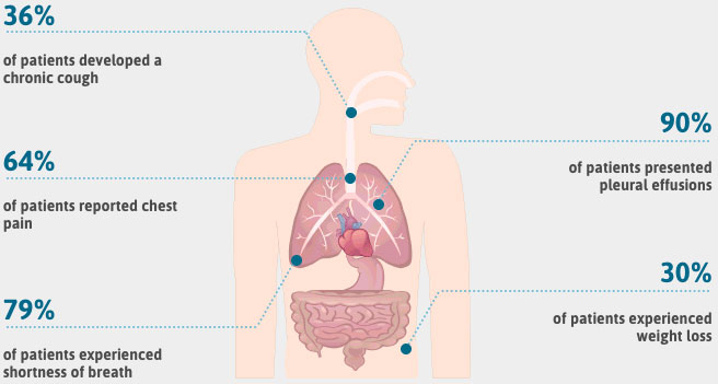 Mesothelioma Symptoms Asbestos Cancer Warning Signs