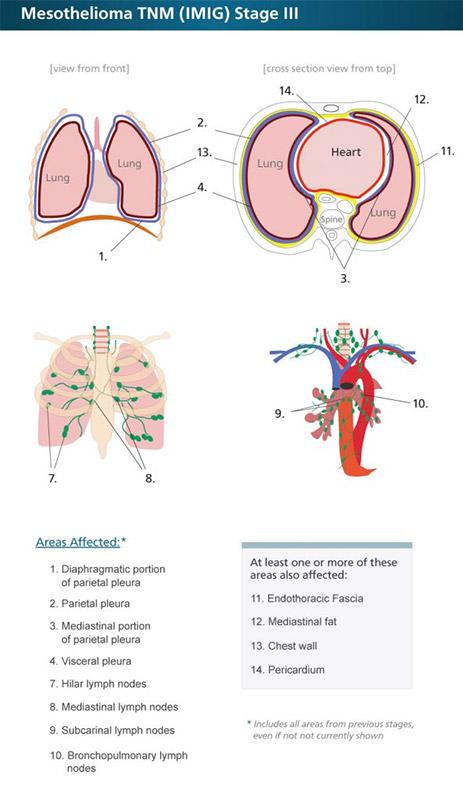 Mesothelioma TNM Stage 3 Diagram