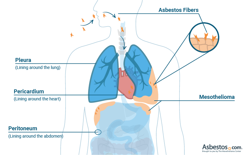 Mesothelioma developing in the pleura, peritoneum and pericardium