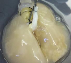 3-D lung model