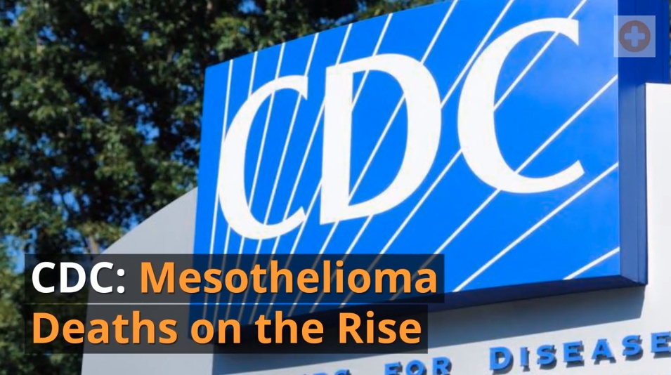 top 10 mesothelioma news stories of 2017