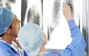 Doctors examining chest x-rays