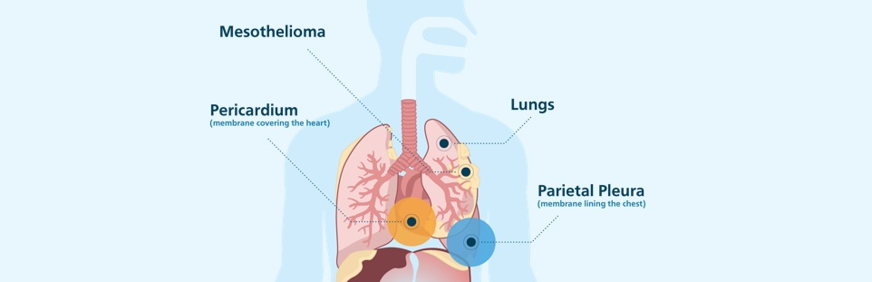 Diagram showing where mesothelioma commonly appears in the body