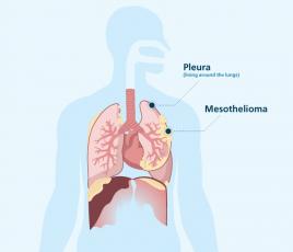Where pleural mesothelioma forms