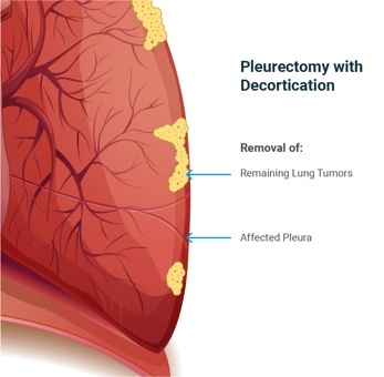 Pleurectomy and Decortication (P/D)