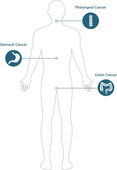 Diagram of potential asbestos cancer: pharyngeal cancer, stomach cancer, & colon cancer.