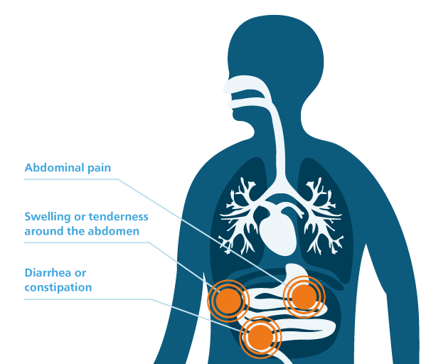 Symptoms of peritoneal mesothelioma graphic