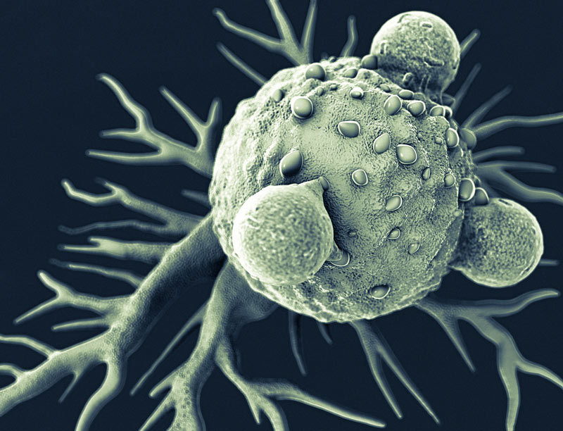 T-lymphocytes-and-cancer-cell