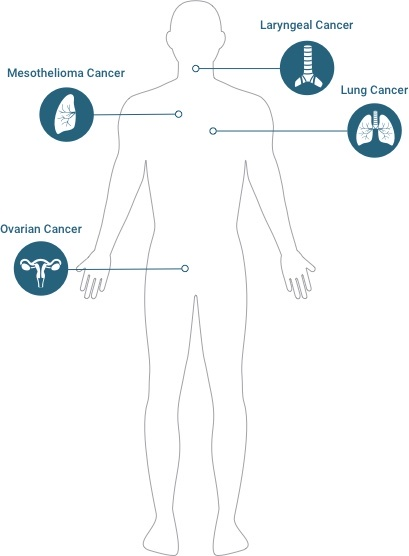 Diagram of known asbestos cancers: mesothelioma, lung cancer, laryngeal cancer, & ovarian cancer.