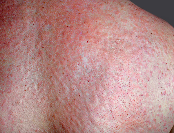itchy rash from sunscreen