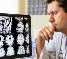 Doctor examines brain scan