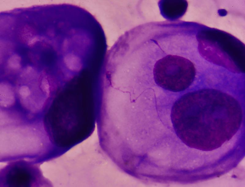 Malignant cells in pleural fluid
