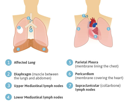 Extrapleural Pneumonectomy - Diagram of Chest