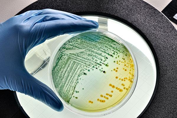 Modified E.Coli Used for Suicide Gene Therapy