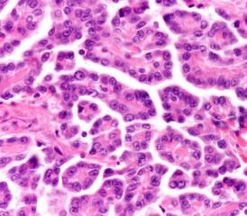 Epithelioid mesothelioma cells