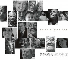 Faces of Lung Cancer