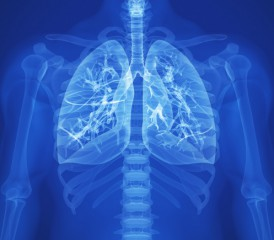 Glowing blue X-ray lungs