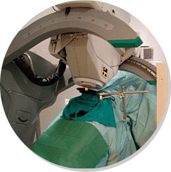 Intraoperative radiation therapy