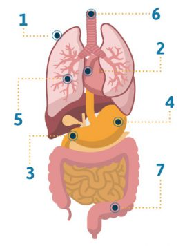 Late stages of mesothelioma symptoms