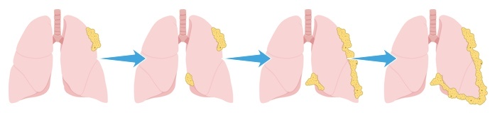 Four stages of mesothelioma tumors forming on the lungs.