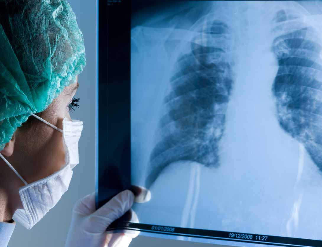 Doctor examines X-ray of lungs