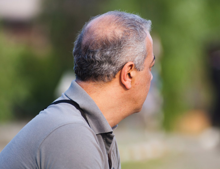 Man balding