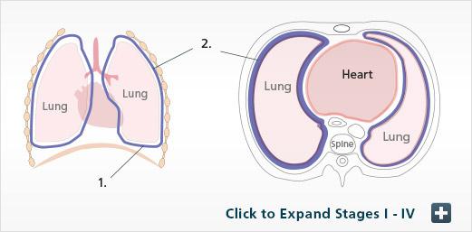 Mesothelioma TNM Stage 1A Diagram