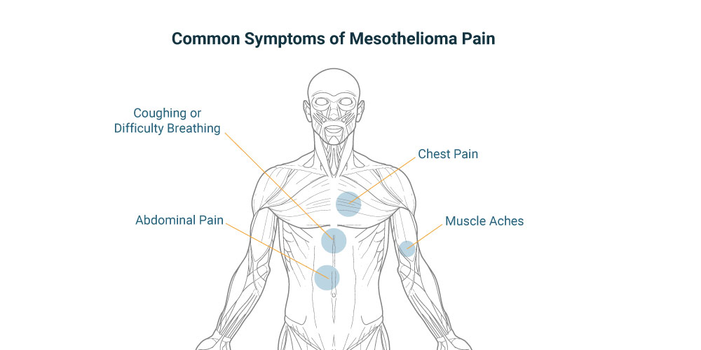 Mesothelioma Pain | Treating, Coping with Chest & Abdominal Pain