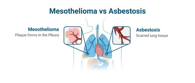 Mesothelioma vs asbestosis diagram