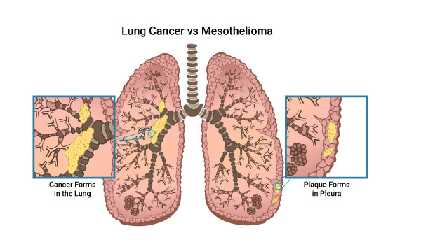 Diagram of a lung comparing malignant mesothelioma plaque in the lining versus a cancerous tumor