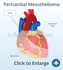 Diagram showing pericardial mesothelioma affecting the heart