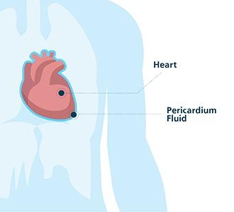 Pericardiocentesis