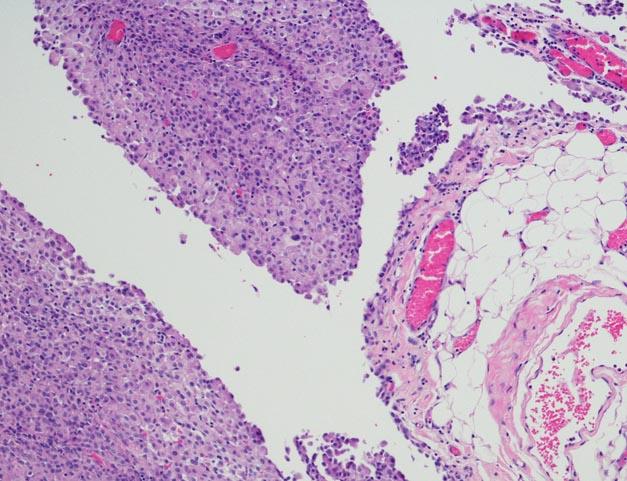 Peritoneal mesothelioma cells
