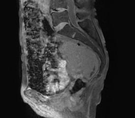 Peritoneal mesothelioma X-ray