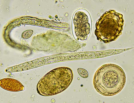 Pinworm parasite and eggs