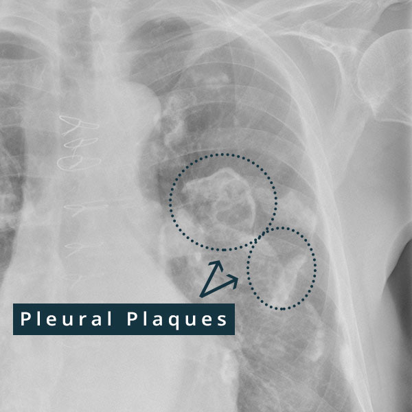 X-ray of calcified asbestos pleural plaques