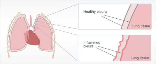 Pleuritis Caused by Asbestos