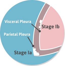 Stage 1a Stage 1b Diagram