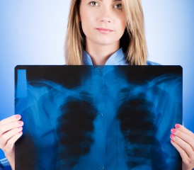 Woman holding X-ray of lung cancer