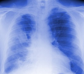 X-Ray of Lung with Mesothelioma